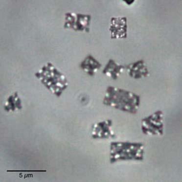 (Microfotografía de la arquea  Haloquadratum walsbyi. Los  puntos brillantes del interior son vesículas  de gas que le permiten  flotar. Fuente de la imagen:  http://microbewiki.kenyon.  edu/index.php/Haloquadra)